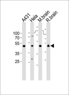 NDUFS2 Antibody - Western blot of lysates from A431, HeLa cell line, mouse brain and rat brain tissue lysate(from left to right), using NDUFS2 Antibody. Antibody was diluted at 1:1000 at each lane. A goat anti-rabbit IgG H&L (HRP) at 1:10000 dilution was used as the secondary antibody. Lysates at 35ug per lane.