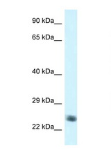 NDUFS8 antibody Western blot of Jurkat Cell lysate. Antibody concentration 1 ug/ml.  This image was taken for the unconjugated form of this product. Other forms have not been tested.