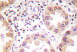 IHC of NEDD8 (D21) pAb in paraffin-embedded human lung carcinoma tissue.