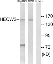 Western blot analysis of lysates from LOVO and HepG2 cells, using HECW2 Antibody. The lane on the right is blocked with the synthesized peptide.