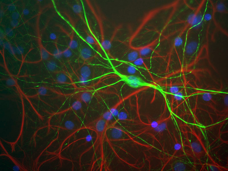 Shows mixed neuron/glial rat brain cultures stained with NEFH / NF-H antibody (green) and chicken polyclonal antibody to Glial Fibrillary Acidic Protein (GFAP) (red). The neurofilament NF-H antibody binds to phosphorylated axonal forms of NF-H and non-phosphorylated dendritic and perikaryal forms.