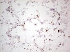 NEFM / NF-M Antibody - Immunohistochemical staining of paraffin-embedded Human skin tissue using anti-NEFM mouse monoclonal antibody. (Heat-induced epitope retrieval by 1 mM EDTA in 10mM Tris, pH8.5, 120C for 3min,