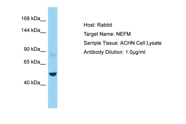 NEFM / NF-M Antibody -  This image was taken for the unconjugated form of this product. Other forms have not been tested.