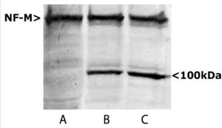 NEFM / NF-M Antibody - 160kDa Neurofilament Medium Antibody - Western blots of homogenates of SH-SY5Y cells, a human neuroblastoma cell line. Lane A shows blotting with NEFM / NF-M Antibody Neurofilament - Medium (NF-M) Antibody, which reveals a strong NF-M band at ~150kDa. Lanes B and C are homogenates of SH-SY5Y cells which were treated with maitotoxin to activate caspase family enzymes (ref. 2). Now a ~100kDa band is seen in addition o the major NF-M band. This corresponds to the C-terminal segment of NF-M which is an in vivo calpain degradation product of human NF-M.