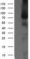 NEK11 Antibody - HEK293T cells were transfected with the pCMV6-ENTRY control (Left lane) or pCMV6-ENTRY NEK11 (Right lane) cDNA for 48 hrs and lysed. Equivalent amounts of cell lysates (5 ug per lane) were separated by SDS-PAGE and immunoblotted with anti-NEK11.