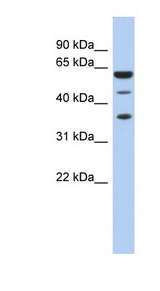 RDBP antibody LS-C110517 Western blot of Fetal Spleen lysate.  This image was taken for the unconjugated form of this product. Other forms have not been tested.