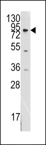 Western blot of anti-MCK10 antibody in SK-BR-3 cell line lysates (35 ug/lane). MCK10 (arrow) was detected using the purified antibody.