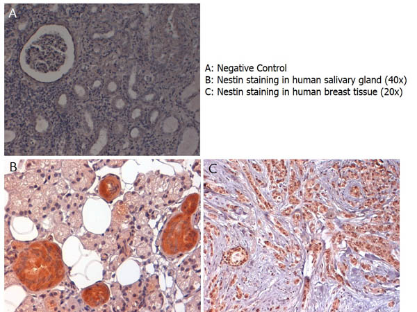 NES / Nestin Antibody - Immunohistochemistry with anti-nestin antibody showing nestin staining in cytoplasm of of ductal epithelium of human salivary gland (B) and in nucleus and cytoplasm of human breast tissue (C). Formalin fixed/paraffin embedded sections were subjected to heat induced epitope retrieval (HIER) at pH 6.2 and then incubated with rabbit anti-nestin antibody at 4.0 µg/ml for 60 minutes. The reaction was developed using MACH 1 universal HRP polymer detection system and visualized with 3'3-diamino-benzidine substrate (DAB).
