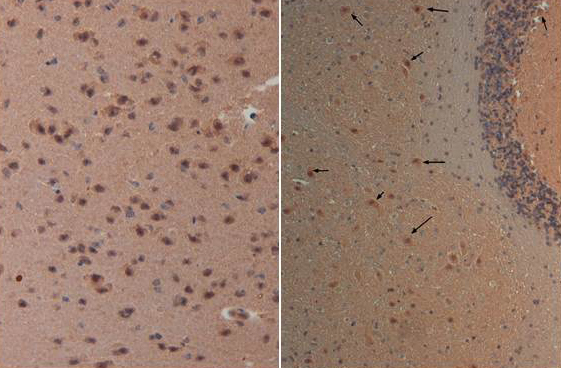 NES / Nestin Antibody - Immunohistochemistry with Anti-nestin antibody at 40X (left) and 20X (right) Tissue: Brain and Cerebellum (right) Fixation: FFPE buffered formalin 10% conc Antigen retrieval: Heat, Citrate pH 6.2. Pressure Cooker Primary antibody: 20ug/ml 1 hour @ room T Secondary antibody: Goat anti Rabbit Polymer HRP Prediluted by the manufacturer 30 min. @ room T Staining: antibody as precipitated red signal with a hematoxylin purple nuclear counterstain.