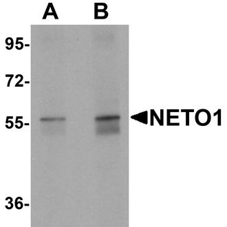 Western blot analysis of NETO1 in human lung tissue lysate with NETO1 antibody at (A) 1 and (B) 2 ug/ml.