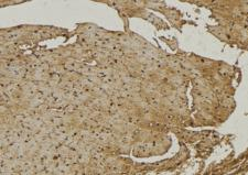 NEU4 Antibody - 1:100 staining mouse muscle tissue by IHC-P. The sample was formaldehyde fixed and a heat mediated antigen retrieval step in citrate buffer was performed. The sample was then blocked and incubated with the antibody for 1.5 hours at 22°C. An HRP conjugated goat anti-rabbit antibody was used as the secondary.