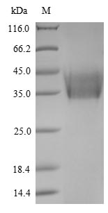 HN Protein - (Tris-Glycine gel) Discontinuous SDS-PAGE (reduced) with 5% enrichment gel and 15% separation gel.