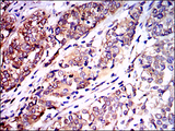IHC of paraffin-embedded bladder cancer tissues using NEFL mouse monoclonal antibody with DAB staining.