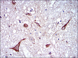 IHC of paraffin-embedded brain tissues using NEFL mouse monoclonal antibody with DAB staining.