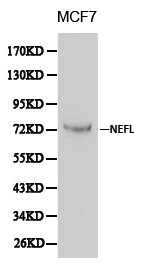 Western blot of NEFL pAb in extracts from MCF7 cells.