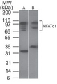 Western blot of NFATc1 in Ramos cell lysate. Lane 1. Without blocking peptide. Lane 2. With blocking peptide.