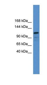 NFATC1 / NFAT2 Antibody - NFATC1 antibody Western blot of COLO205 cell lysate. This image was taken for the unconjugated form of this product. Other forms have not been tested.