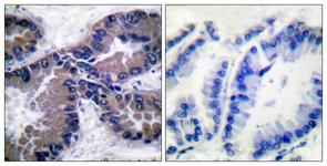 IHC of paraffin-embedded human lung carcinoma tissue, using Nrf2 Antibody. The picture on the right is treated with the synthesized peptide.