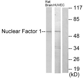 NFIA+NFIB+NFIC+NFIX Antibody - Western blot analysis of lysates from rat brain and HUVEC cells, using Nuclear Factor 1 Antibody. The lane on the right is blocked with the synthesized peptide.