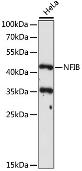 NFIB Antibody - Western blot analysis of extracts of HeLa cells, using NFIB antibody at 1:1000 dilution. The secondary antibody used was an HRP Goat Anti-Rabbit IgG (H+L) at 1:10000 dilution. Lysates were loaded 25ug per lane and 3% nonfat dry milk in TBST was used for blocking. An ECL Kit was used for detection and the exposure time was 120s.