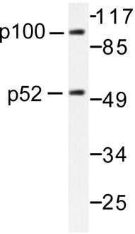 NFKB1 / NF-Kappa-B Antibody - Western blot of NFB-p105/p50 (A901) pAb in extracts from HeLa cells.