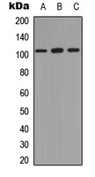 NFKB1 / NF-Kappa-B Antibody - Western blot analysis of NF-kappaB p105 (pS893) expression in HEK293T (A); HeLa (B); A431 (C) whole cell lysates.