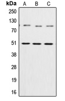 NFKB1 / NF-Kappa-B Antibody - Western blot analysis of NF-kappaB p105/p50 expression in HeLa (A); NIH3T3 (B); rat liver (C) whole cell lysates.