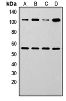 NFKB1 / NF-Kappa-B Antibody - Western blot analysis of NF-kappaB p105/p50 expression in Jurkat (A); MCF7 (B); A431 (C); rat muscle (D) whole cell lysates.