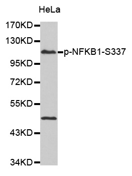 NFKB1 / NF-Kappa-B Antibody - Western blot analysis of extract from HeLa cells.