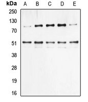 NFKB1 / NF-Kappa-B Antibody - Western blot analysis of NF-kappaB p105/p50 (pS337) expression in HeLa (A); HEK293T TNF-treated (B); NIH3T3 (C); Raw264.7 (D); rat liver (E) whole cell lysates.