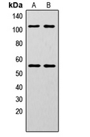 NFKB1 / NF-Kappa-B Antibody - Western blot analysis of NF-kappaB p105/p50 (pS337) expression in HeLa (A); MCF7 (B) whole cell lysates.