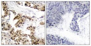 IHC of paraffin-embedded human breast carcinoma, using NF-kappaB p105/p50 (Phospho-Ser893) Antibody. The picture on the right is treated with the synthesized peptide.