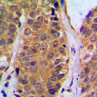 NFKB1 / NF-Kappa-B Antibody - Immunohistochemical analysis of NF-kappaB p105 (pS927) staining in human breast cancer formalin fixed paraffin embedded tissue section. The section was pre-treated using heat mediated antigen retrieval with sodium citrate buffer (pH 6.0). The section was then incubated with the antibody at room temperature and detected using an HRP conjugated compact polymer system. DAB was used as the chromogen. The section was then counterstained with hematoxylin and mounted with DPX.
