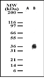 Detection of cleaved IkBalpha in Jurkat cell lysates. Lane A. untreated cell lysate. Lane B. Jurkat cells treated with anti-Fas antibody for 30 mins.