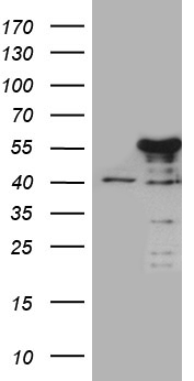 NFKBIE / IKB Epsilon Antibody - HEK293T cells were transfected with the pCMV6-ENTRY control. (Left lane) or pCMV6-ENTRY NFKBIE. (Right lane) cDNA for 48 hrs and lysed. Equivalent amounts of cell lysates. (5 ug per lane) were separated by SDS-PAGE and immunoblotted with anti-NFKBIE. (1:2000)