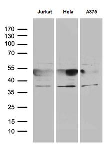 NFKBIE / IKB Epsilon Antibody - Western blot analysis of extracts. (35ug) from 3 different cell lines by using anti-NFKBIE monoclonal antibody. (1:500)