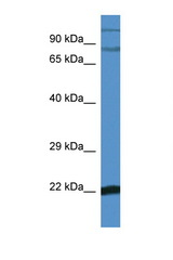 NFKBIZ antibody Western blot of Mouse Brain lysate. Antibody concentration 1 ug/ml. This image was taken for the unconjugated form of this product. Other forms have not been tested.