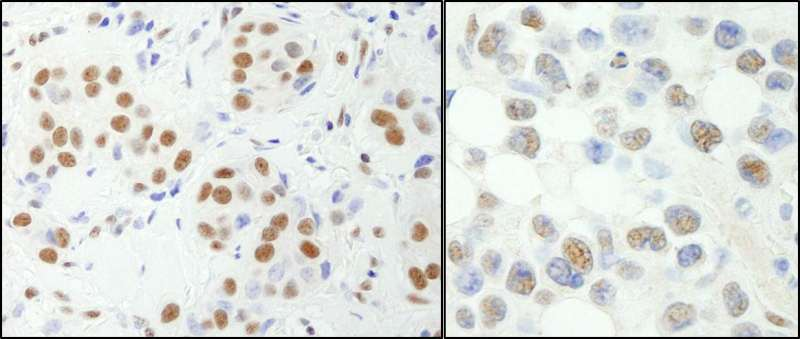Detection of Human and Mouse NF-YA by Immunohistochemistry. Sample: FFPE section of human breast carcinoma (left) and mouse hybridoma tumor (right). Antibody: Affinity purified rabbit anti-NF-YA used at a dilution of 1:200 (1 ug/ml). Detection: DAB.