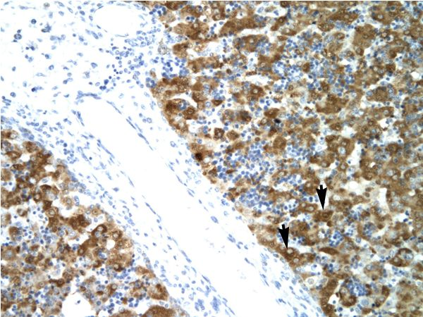 NFYA antibody ARP31380_P050-NP_002496-NFYA (nuclear transcription factor Y, alpha) Antibody was used in IHC to stain formalin-fixed, paraffin-embedded human liver.  This image was taken for the unconjugated form of this product. Other forms have not been tested.