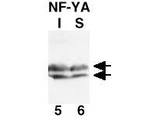Anti-NF-Y(A subunit) Antibody - Western Blot. CHO-7 cells were cultured in the absence (I) or presence (S) of cholesterol. Equivalent aliquots of chromatin from each sample containing ~50 ug of total protein were subjected to analysis by SDS-PAGE and western blot. After transfer, the membrane was probed using anti-NF-YA as the primary antibody at a 1:1000 dilution, followed by reaction with HRP conjugated Goat-anti-Rabbit IgG [H&L]. Signal was developed using an ECL kit followed by autoradiography using a 30 exposure. The antibody recognizes NF-YA as a doublet of ~42 kD in size.