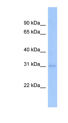 NFYB antibody Western blot of Transfected 293T cell lysate. This image was taken for the unconjugated form of this product. Other forms have not been tested.
