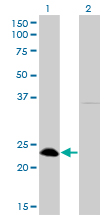 Western Blot analysis of NFYB expression in transfected 293T cell line by NFYB monoclonal antibody (M01), clone 6H6.Lane 1: NFYB transfected lysate(22.8 KDa).Lane 2: Non-transfected lysate.