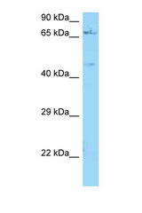 NGFR antibody Western blot of ACHN Cell lysate. Antibody concentration 1 ug/ml.  This image was taken for the unconjugated form of this product. Other forms have not been tested.