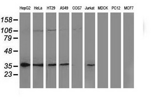 NHEJ1 / XLF Antibody - Western blot of extracts (35 ug) from 9 different cell lines by using anti-NHEJ1 monoclonal antibody.