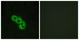 Immunofluorescence analysis of MCF7 cells, using GPR109 Antibody. The picture on the right is blocked with the synthesized peptide.