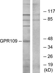 Western blot analysis of lysates from RAW264.7 cells, using GPR109 Antibody. The lane on the right is blocked with the synthesized peptide.