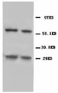 NIP3 / BNIP3 Antibody -  This image was taken for the unconjugated form of this product. Other forms have not been tested.