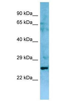 NIPAL3 / NPAL3 antibody Western Blot of Fetal Thymus. Antibody dilution: 1 ug/ml.  This image was taken for the unconjugated form of this product. Other forms have not been tested.