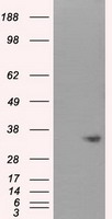 HEK293T cells were transfected with the pCMV6-ENTRY control (Left lane) or pCMV6-ENTRY NIT1 (Right lane) cDNA for 48 hrs and lysed. Equivalent amounts of cell lysates (5 ug per lane) were separated by SDS-PAGE and immunoblotted with anti-NIT1.