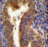 NIX Antibody immunohistochemistry of formalin-fixed and paraffin-embedded human uterus tissue followed by peroxidase-conjugated secondary antibody and DAB staining.